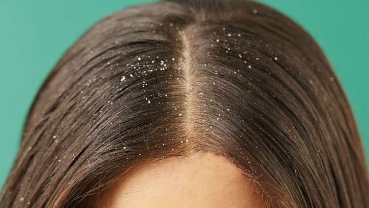 10 Home Countermeasures To Fight Dandruff